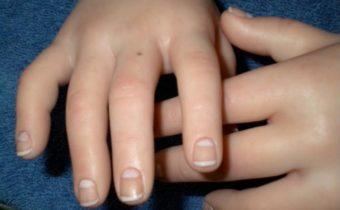 Что означают родинки на ладонях и пальцах